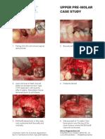 11-Pre-Molar-Case-Study.pdf