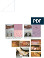 CROMOBLASTOMICOSIS(cromomicosis) Y MIMCETOMA(pie de madura)