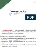 Caesarean section4817080565385082090