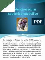 Accidente vascular isquémico-encefálico