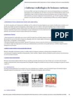interpretacion-e-informe-radiologico-de-lesiones-cariosas