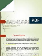 tuberculosis pulmonar.ppt