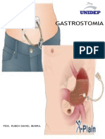 gastrostomia