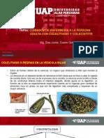 UNIDAD III- SEMANA 5-TEMA CUIDADOS DE ENFERMERÍA EN ADULTO CON COLECISTITIS Y COLELITIASIS