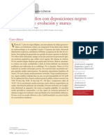 Caso Clinico Hemorragia Digestiva