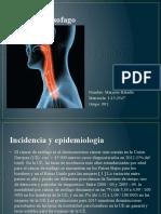 cancer de esofago.pptx