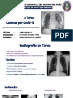 Radiografia de torax, covid-19 (1)