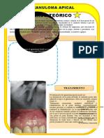 GRANULOMA APICAL.docx
