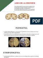 Enfermedades de Alzheimer