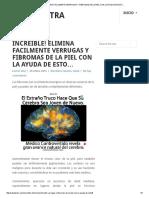 INCREIBLE! ELIMINA FACILMENTE VERRUGAS Y FIBROMAS DE LA PIEL CON LA AYUDA DE ESTO.