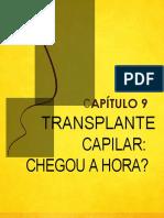 Fio-a-fio-Transplante-Capilar-Chegou-a-Hora.pdf