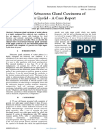 Recurrent Sebaceous Gland Carcinoma of Upper Eyelid - A Case Report