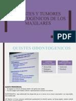QUISTES Y TUMORES ODONTOGÉNICOS DE LOS MAXILARES.pptx