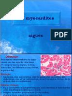 Myocardites et cardiomyopathies