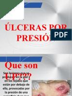 ULCERAS.ppt