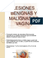 lesionesbenignasymalignasdevagina-091119005539-phpapp01