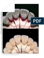 Clinical considerations and rationale for the use of simplified instrumentation in occlusal rehabilitation part 2, Stefano Gracis