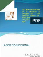 labor disfuncional