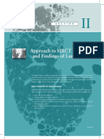 Webb-Ch3-HRCT-Findings-Linear-and-Reticular-Opacities