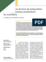 Évolution des formes de préparation pour inlaysonlays postérieurs au maxillaire-Gerdolle 2014