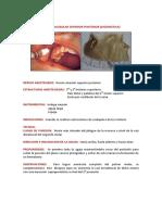 3. técninca ASP y palatina anterior