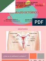 embarazo ectopico (1)