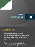 SEMINARIO TUMORES CEREBRO