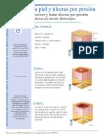 etapas de ulceras