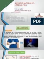 FRACTURAS Y QUEMADURAS expo
