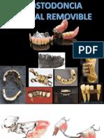 Mg. MIDWAR CABALLERO N. PPR -1 Y 2 - diagnostico y clasificacion de Kennedy