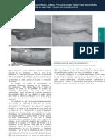 TRADUCCION PAG 5-12 -Grabb-and-Smith-s-Plastic-Surgery-7th-Edition (pdf.io) ES