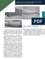 ULTIMA 1 TRADUCCION PAG 5-12 -Grabb-and-Smith-s-Plastic-Surgery-7th-Edition (pdf.io) ES (pdf.io)