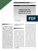 meningionma