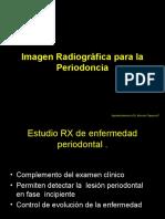 12 imagen radiografica para la periodoncia.ppt