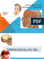 parlisis-facial