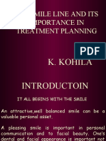 SMILE LINE AND ITS IMPORTANCE IN TREATMENT PLANNING