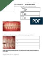 Reconocimiento gingival (prácticas).docx