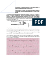 Eletrocardiografia - Resumo