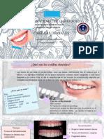 Carillas Dentales.pptx