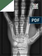 Grupo 3 Radiografía Carpal.docx