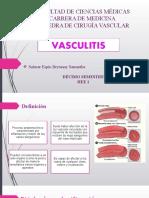 Vasculitis.pptx