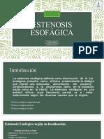Estenosis Esofágica