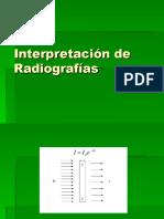 Interpretación Placas r1