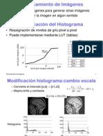 Histograma modificacion