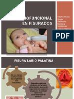 192391072-Terapia-Miofuncional-en-Fisurados.pdf