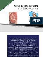 DERMATOLOGIA CARCINOMA EPIDERMOIDE ESPINOCELULAR