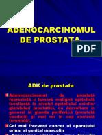 Adenocarcinomul de prostata
