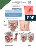 Tratamiento Quirúrgico de La Patología Del Intestino Delgado