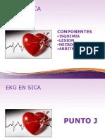 EKG Y SX COR URG PARTE 2