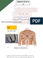 electrocardiograma terceta parte.pptx